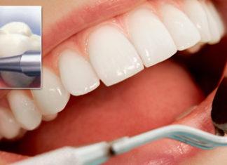 detartraj dentar in sector 2