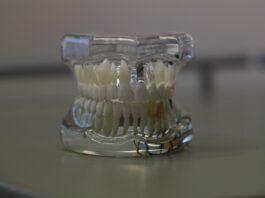 proteze pe implant